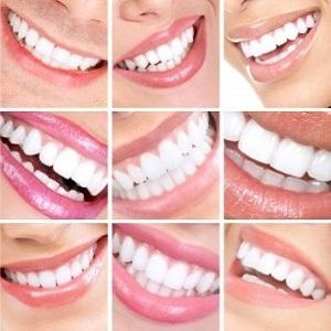 ارتودنسی شفاف برای ترمیم فاصله بین دندانها