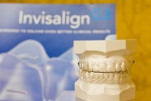 ارتودنسی شفاف برای دندانهای نامرتب