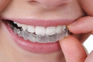 ارتودنسی شفاف تنها برای دندانهای ردیف بالا
