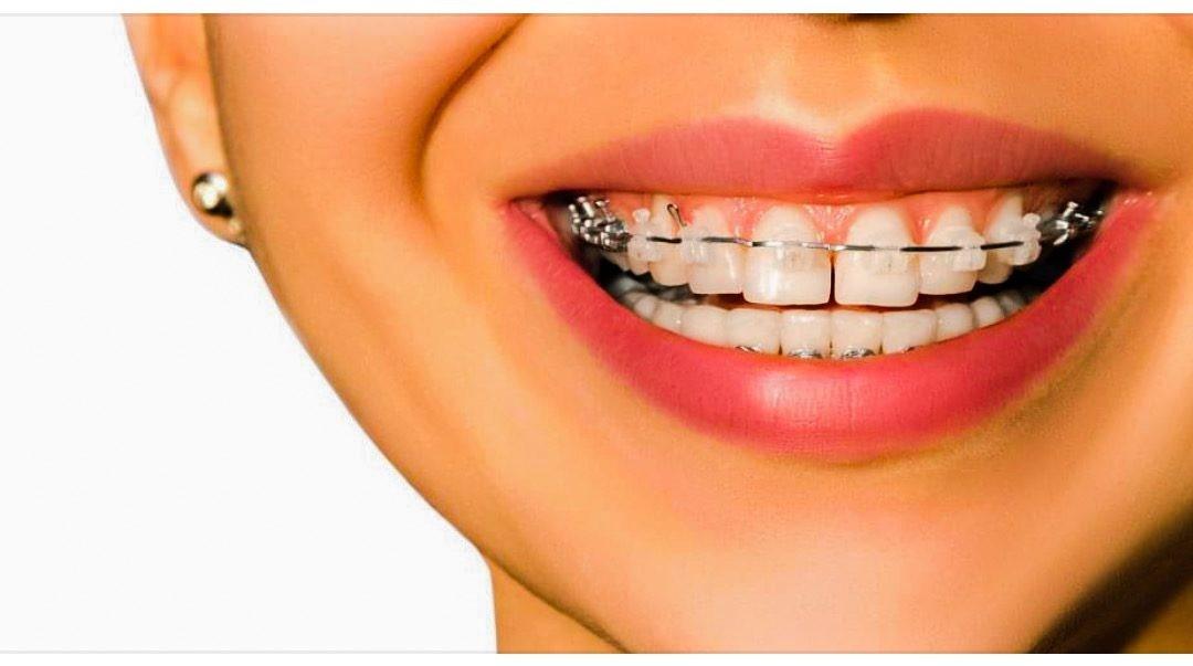 اهمیت بهداشت دهان و دندان در حین درمان ارتودنسی