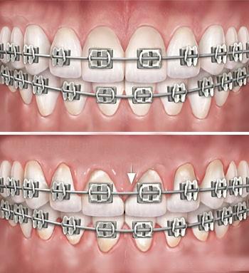 بهداشت دهان و دندان در نوجوانان