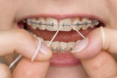 تمیز کردن بین دندانها