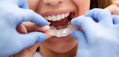 دندانپزشک درمان ارتودنسی را ارائه میکند؟ چه نیازی به متخصص ارتودنسی است؟