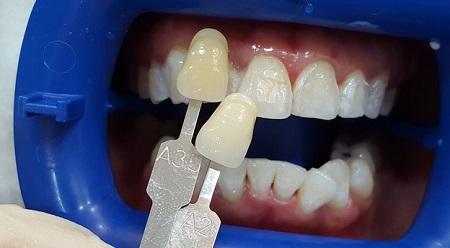 روشهای سفید کردن دندانها