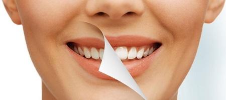 روند زرد شدن دندان ها