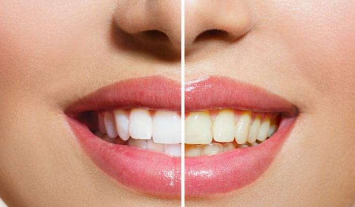 سفيد كردن دندان و بلیچینگ رفع سریع زردی دندان با لیزر و روش های دیگر