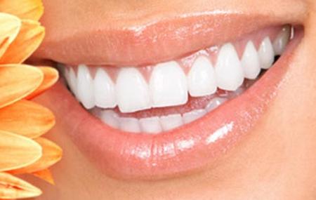 سوالات متداول سفید کردن دندان