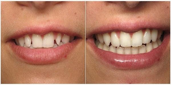 علل فاصلهدار شدن دندانها 1