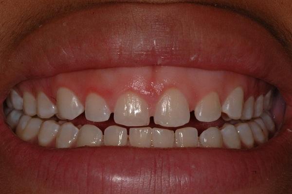 علل فاصلهدار شدن دندانها