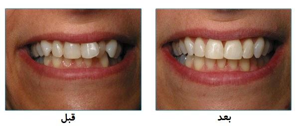 میزان نامرتبی دندانها