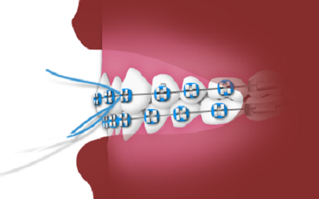 نخ دندان کشیدن در حین درمان ارتودنسی