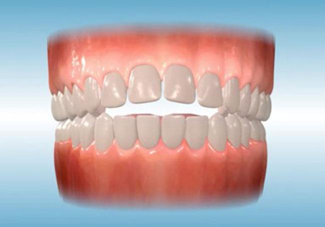 orthodontis